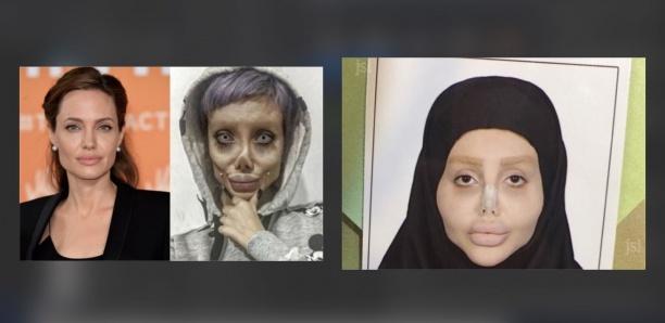 Sahar Tabar, l'Iranienne qui voulait ressembler à Angelina Jolie arrêtée pour