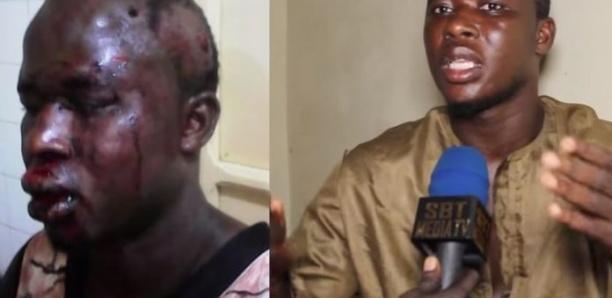 Un jeune commerçant saùvagement torturé par un faux policier et agent de mairie de pikine nord